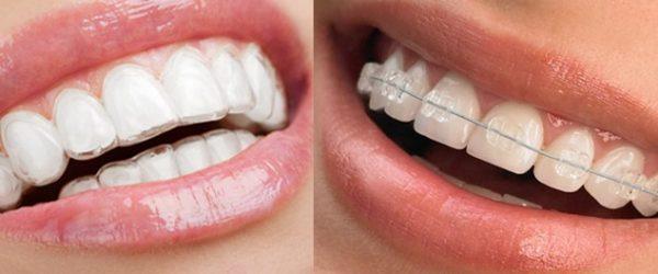 ortodonzia apparecchi denti invisalign quartu