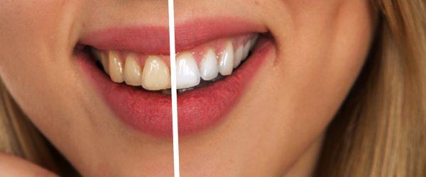Sbiancamento dentale professionale quartu